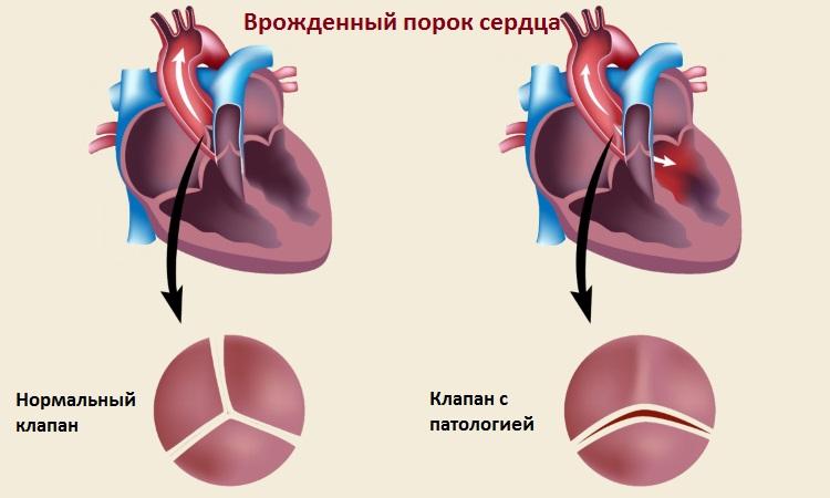 Порок сердца: понятие, виды (врожденный, приобретенный) и их обзор, симптомы, лечение