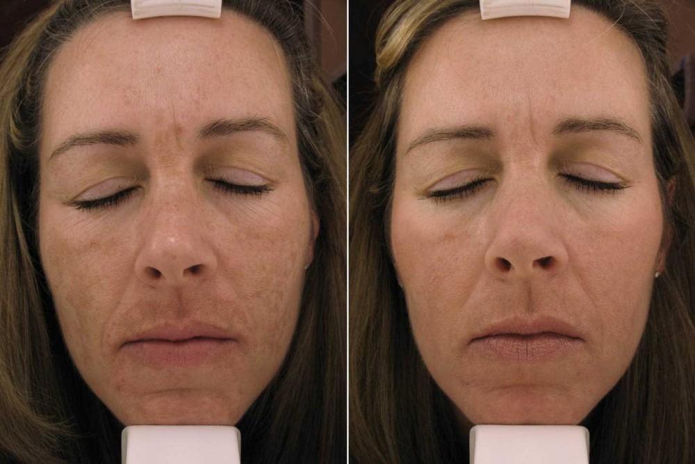Пилинг или чистка лица – что лучше, отличия, что выбрать