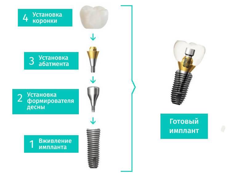 Имплантация зубов — что это и как она происходит, противопоказания
