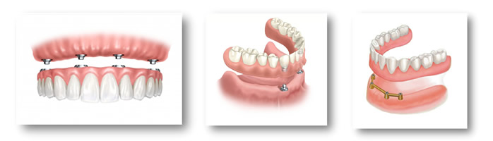 Протезирование при полном отсутствии зубов - цена, виды, отзывы
