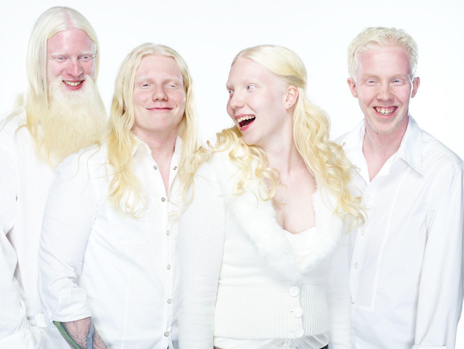 Альбинос википедия