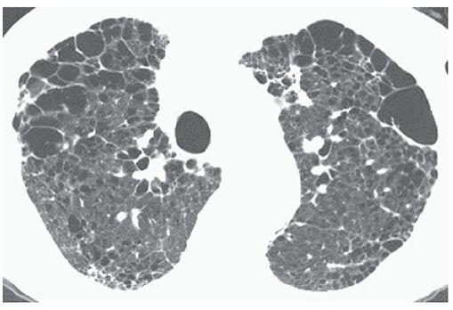 Эмфизема легких: симптомы, причины, лечение, прогноз