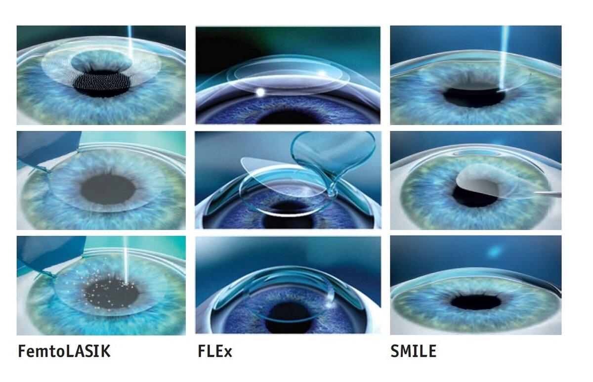 Что такое артифакия глаза когда применяется