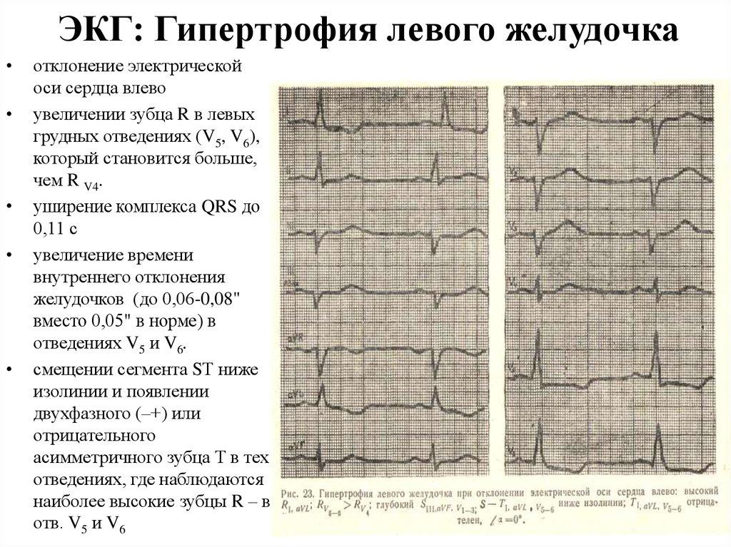 Что такое кардиомегалия: описание и признаки заболевания, лечение, прогноз