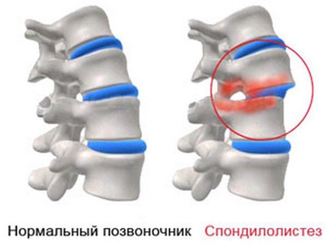 Смещение костных элементов или ретролистез l5 позвонка: что это такое и как лечить разновидность патологии вертеброгенного характера