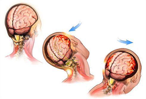 Сотрясение мозга: признаки, симптомы и лечение – напоправку