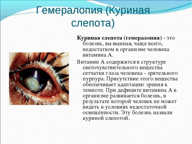Куриная слепота — болезнь, лечение, недостаток витамина