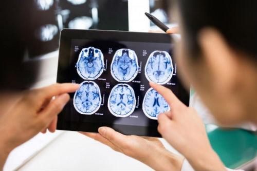 Киста головного мозга: что это, симптомы, лечение