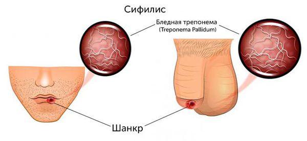 Что такое сифилис, как самостоятельно его распознать: первые признаки и симптомы, причины