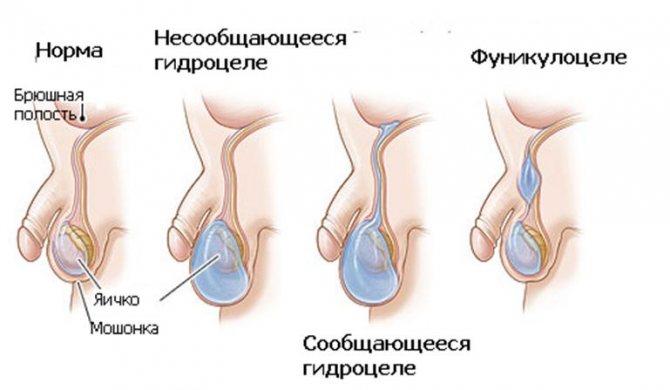 Болезни яичек у мужчин: перекрут яичка, варикоцеле, воспаление, рак