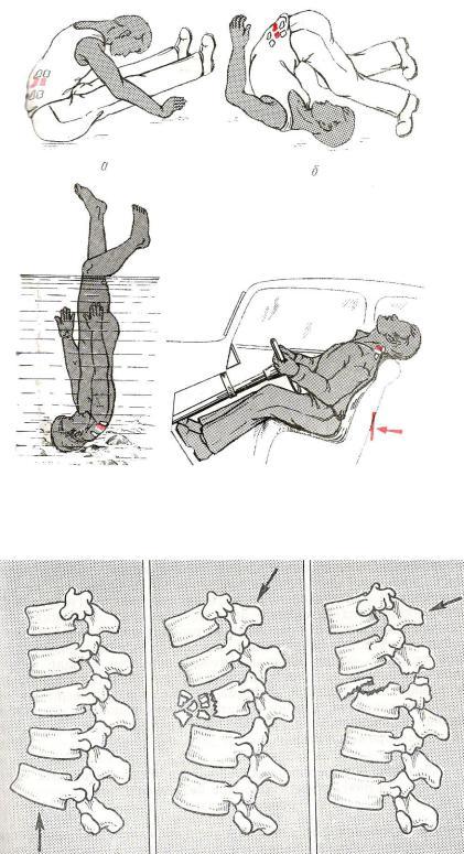 Перелом позвоночника (спины): симптомы, признаки, виды переломов, классификация, лечение, последствия