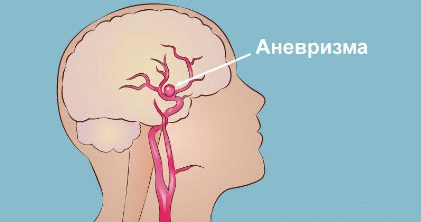 Аневризма сосудов головного мозга: симптомы, причины, лечения | ваш путь к здоровью