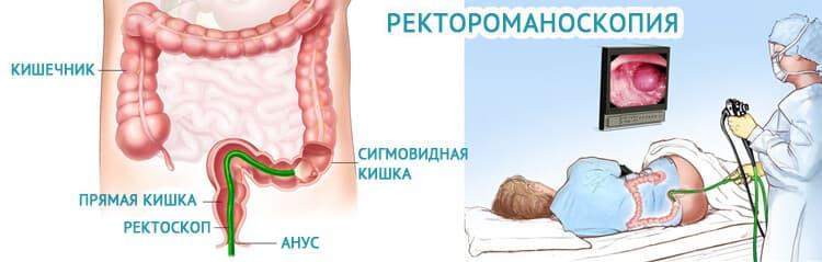 Ирригоскопия кишечника: суть исследования, подготовка и проведение процедуры