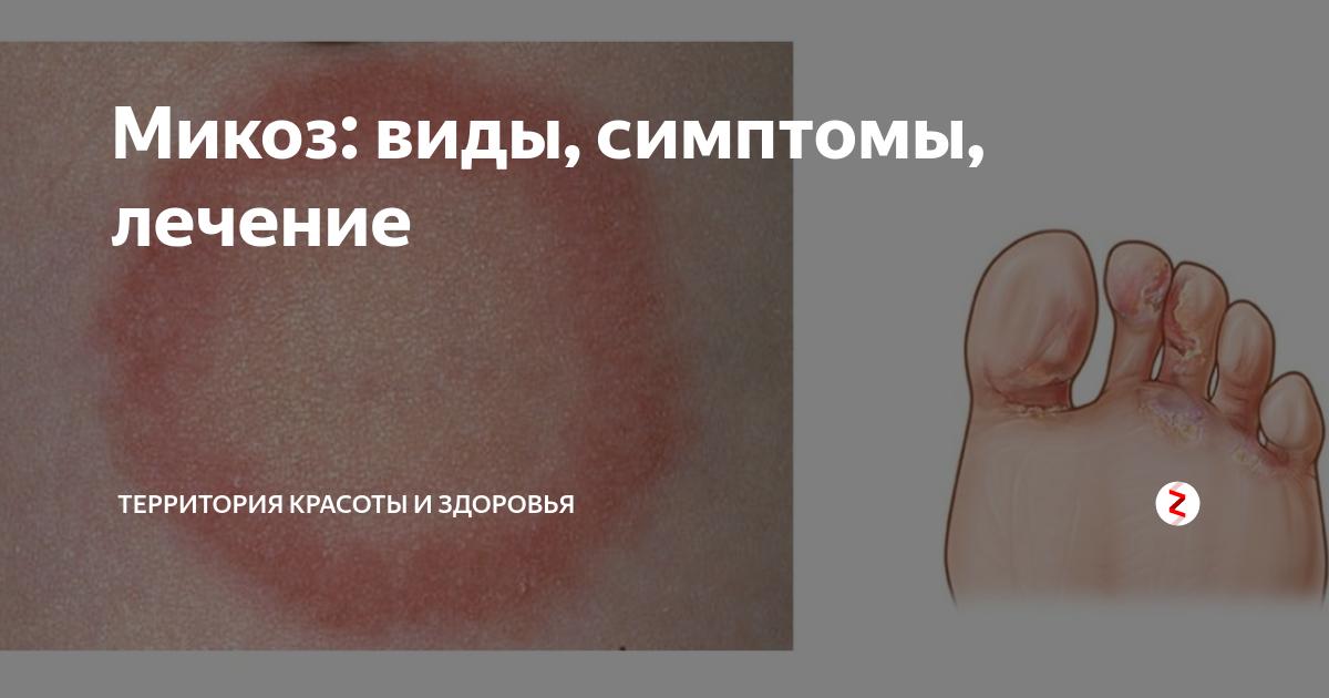 Микоз стопы: фото, симптомы, лечение, профилактика