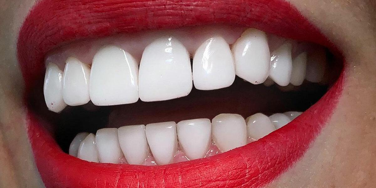 Плюсы и минусы виниров на зубы - виды винирования зубов