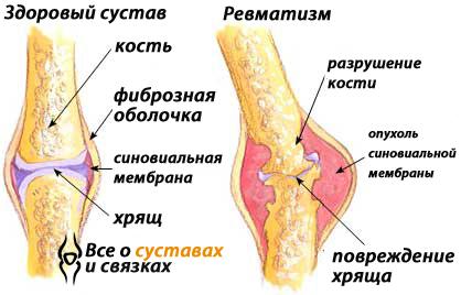 Ревматизм суставов - симптомы и лечение у взрослых, как лечить ревматизм, диагностика
