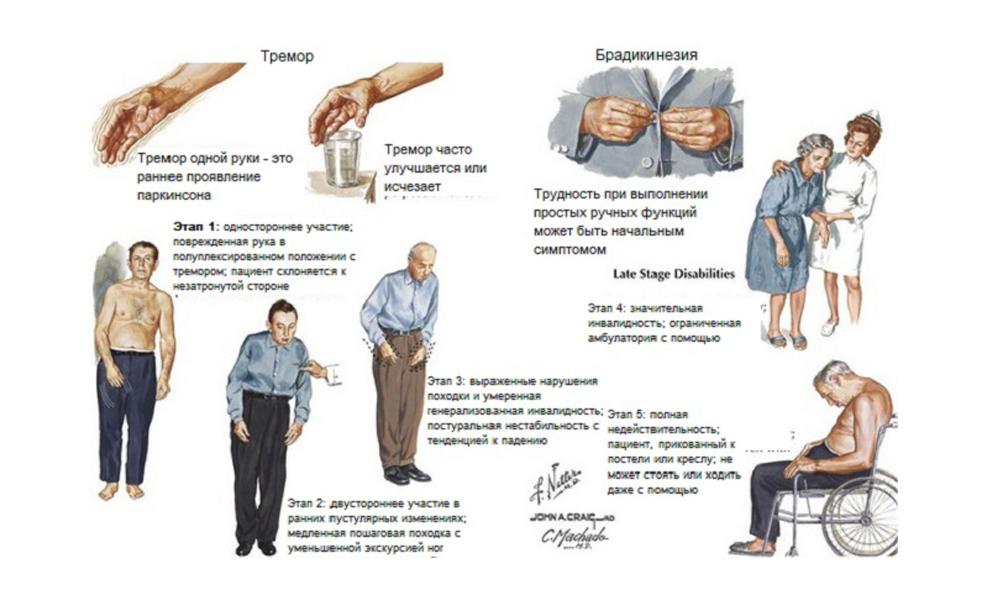 Синдром паркинсонизма: симптомы и лечение, отличие от болезни паркинсона