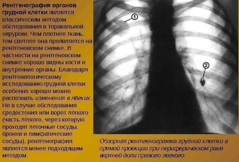 Апхт: что это в онкологии, расшифровка, особенности