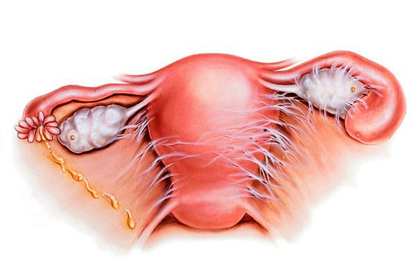 Эндометрит: симптомы, лечение, последствия