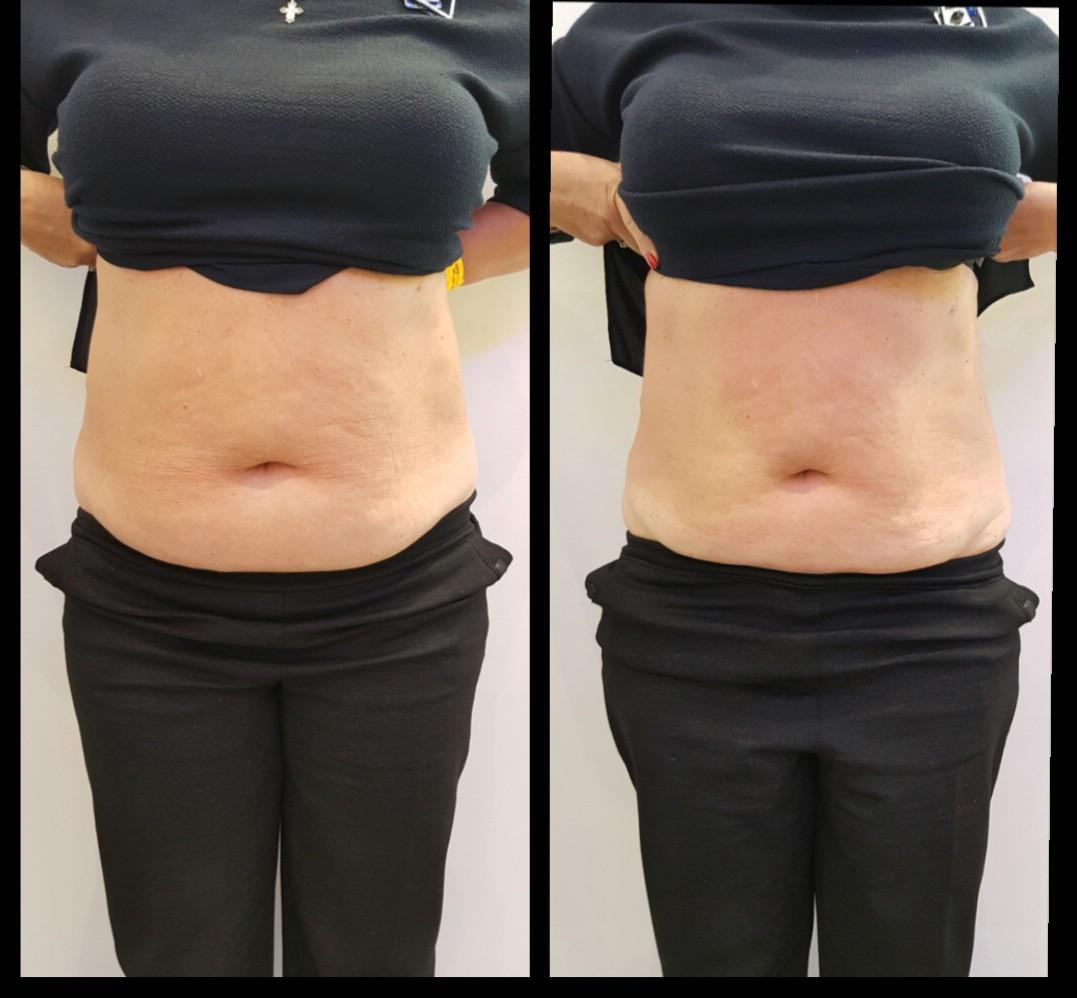 Применение липолитиков для похудения