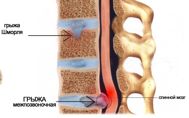 Грыжа шморля шейного отдела: симптомы, лечение...