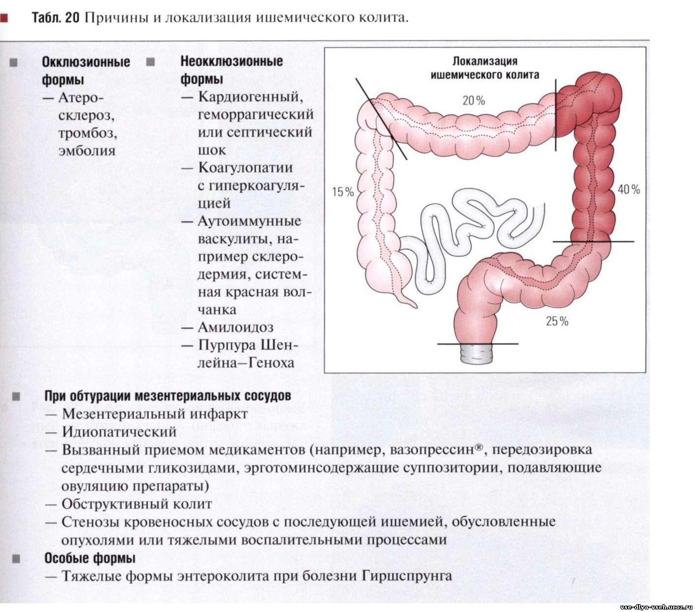Колит кишечника – симптомы, причины и лечение