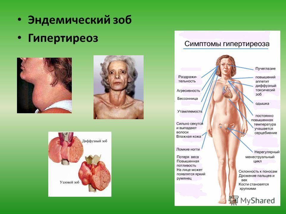 Гипотиреоз: симптомы и лечение у женщин, диета