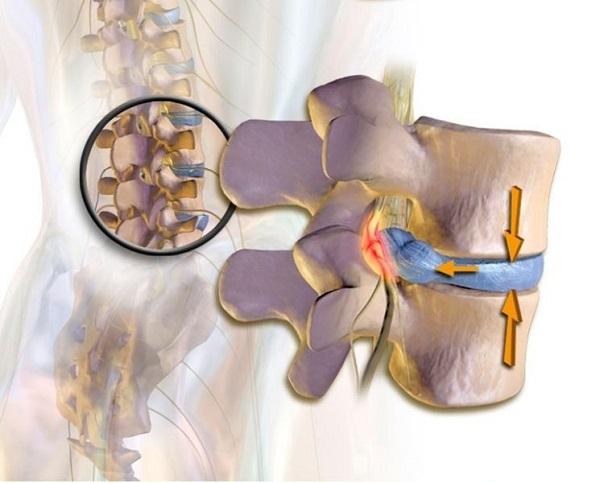 Радикулит (радикулопатия). симптомы и новые методы лечения радикулита