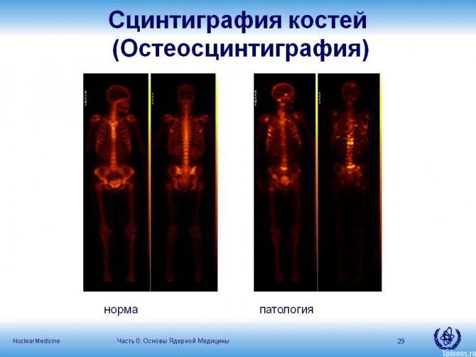 После сцинтиграфии костей скелета сроки выведения вещества — все про суставы