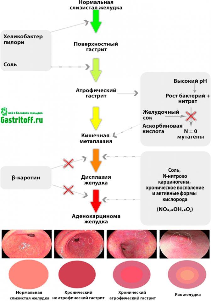 Острый гастрит — виды, причины, симптомы, лечение и питание