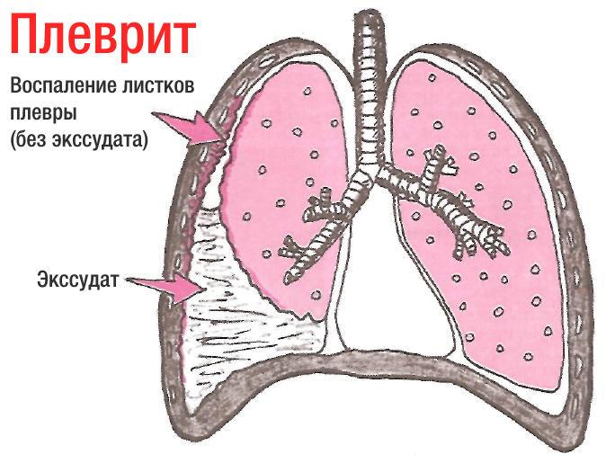 Плеврит легких симптомы, лечение, признаки и диагностика