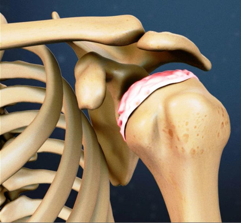 Что это такое остеоартрит и как лечить