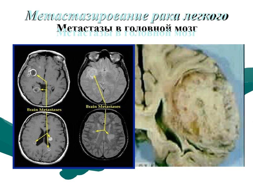 Метастазы опухоли - симптомы  и лечение