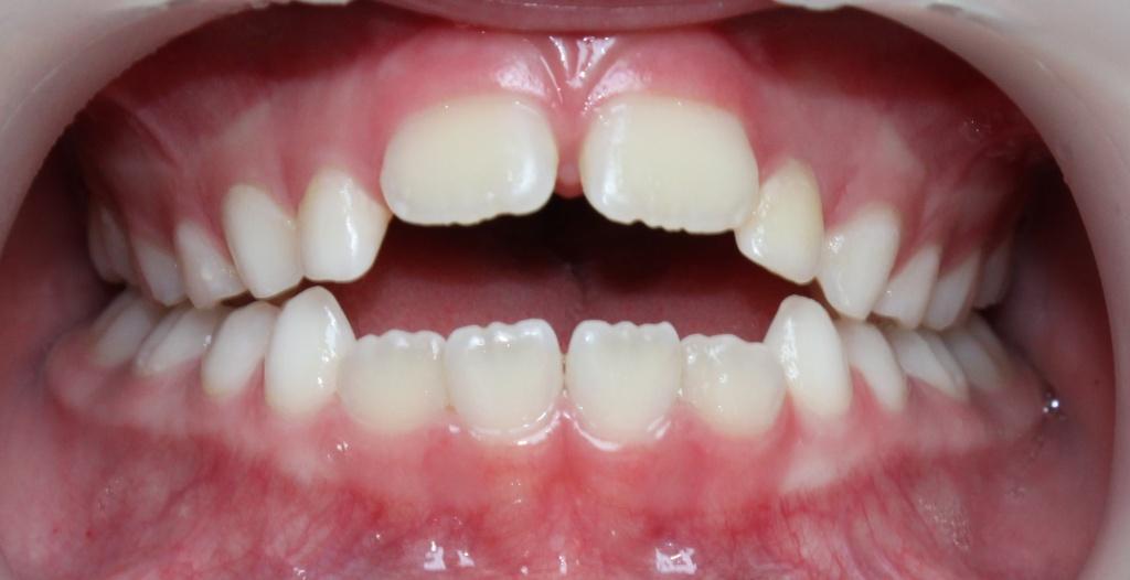 Окклюзия зубов