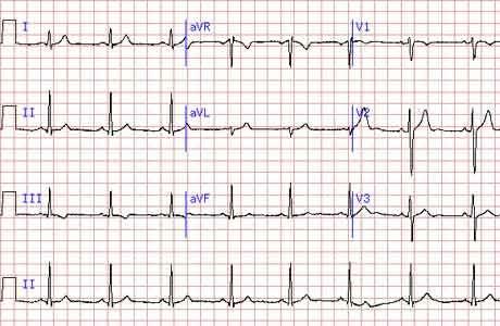 Расшифровка кардиограммы сердца ритм синусовый что это - заболевания сердца