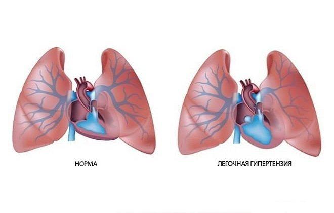 Легочная гипертензия 1, 2, 3 и 4 степени: что это такое, описание прогрессирования болезни