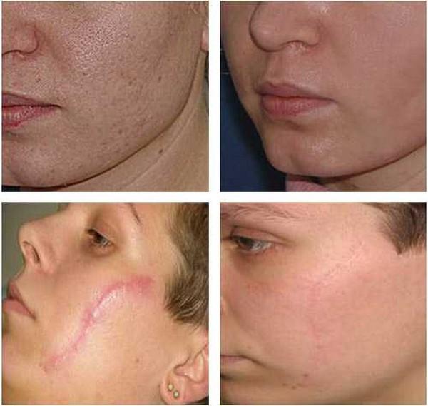 Микронидлинг кожи лица или коллагенстимулирующая терапия