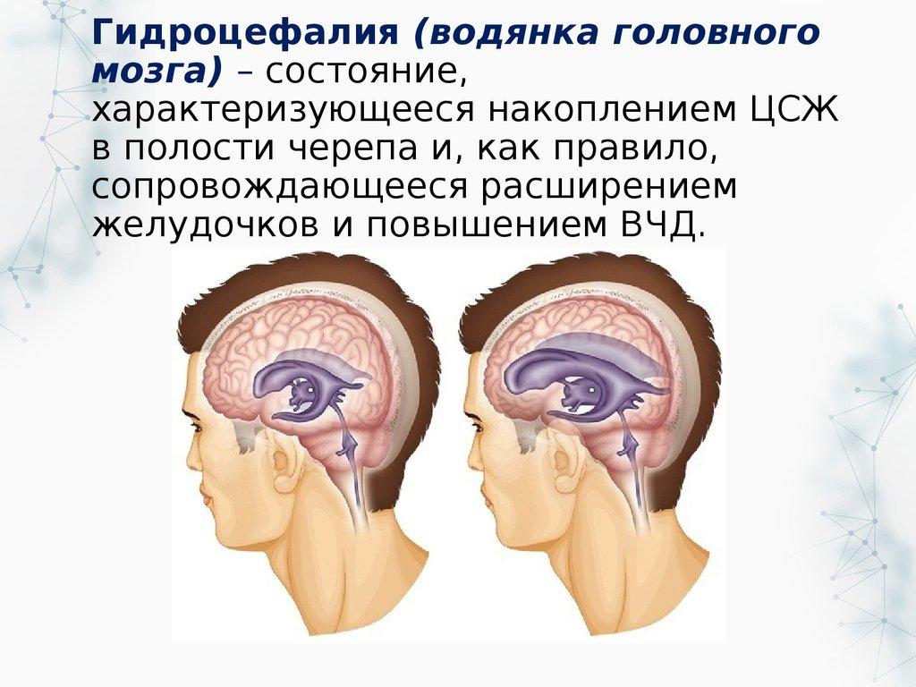 Симптомы и методы лечения гидроцефалии головного мозга у взрослых