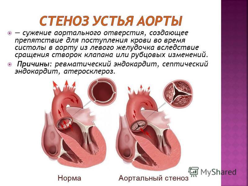 Атеросклероз сосудов сердца — причины появления и прогноз на жизнь