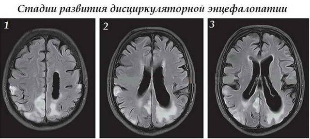 Дисциркуляторная энцефалопатия - степени, лечение и прогноз