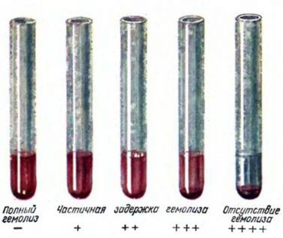 Реакция вассермана – что это за анализ? rw-анализ крови – что это, что означает расшифровка?