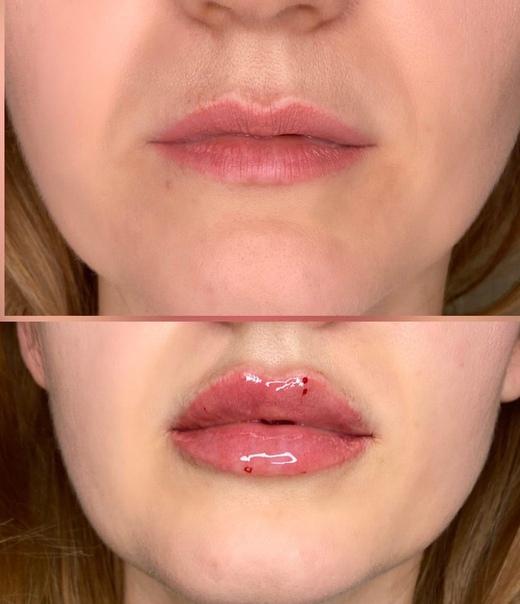 Техника увеличения губ - плоская, парижская, метод тп, бантиком, процедура гиалуроновой кислотой, введение филлеров