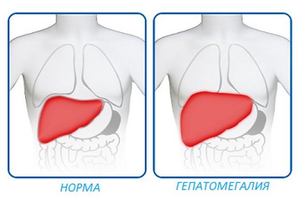 Что такое гепатомегалия, и как она лечится