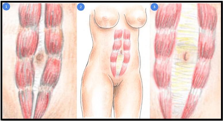 Как убрать диастаз после родов без операции: самые эффективные упражнения от диастаза после беременности в домашних условияхwomfit