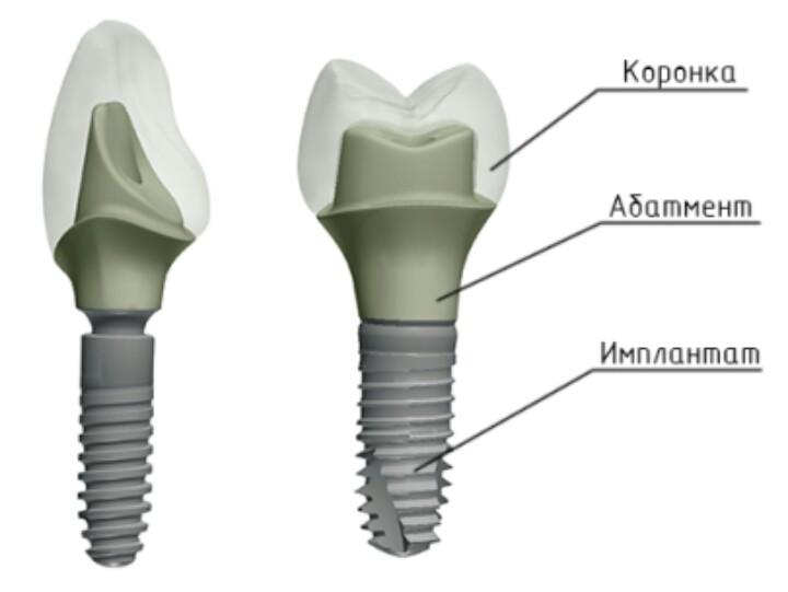 Что такое абатмент в стоматологии? установка, виды, фото