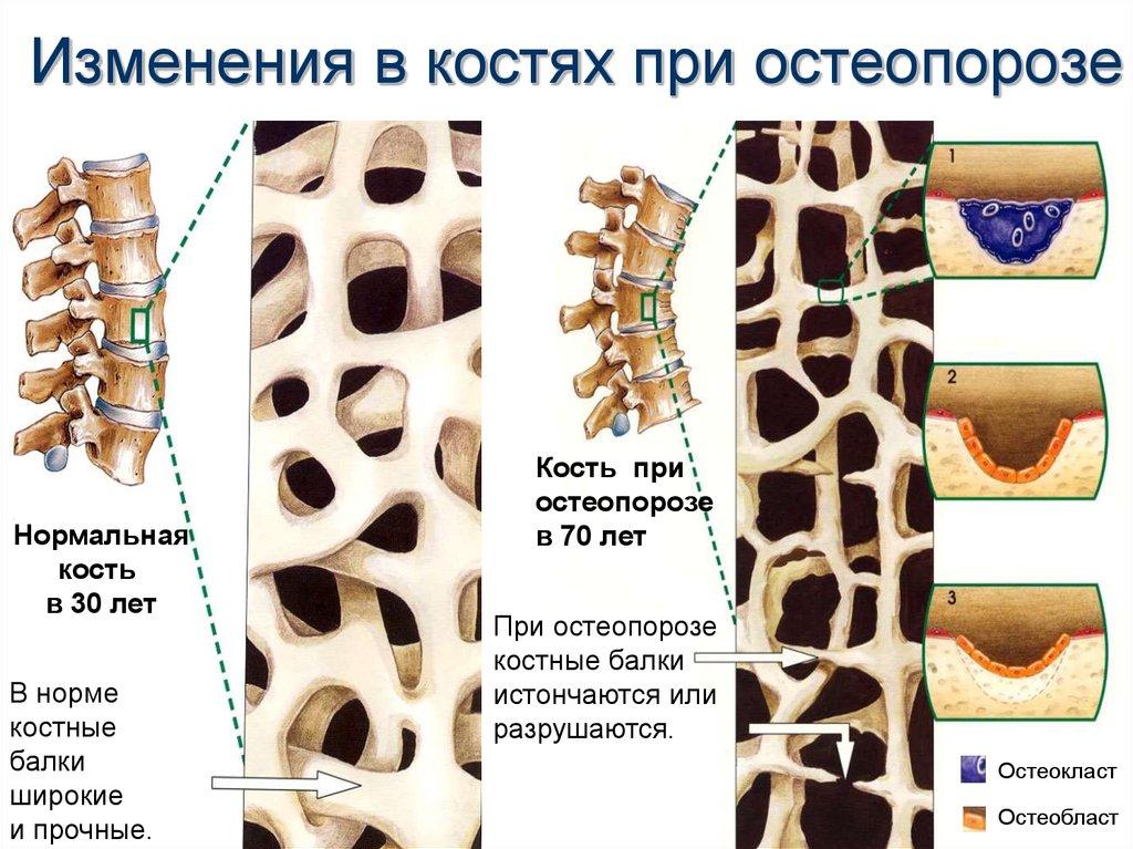 Остеопороз: симптомы и лечение, что это такое, причины и виды, как проявляется