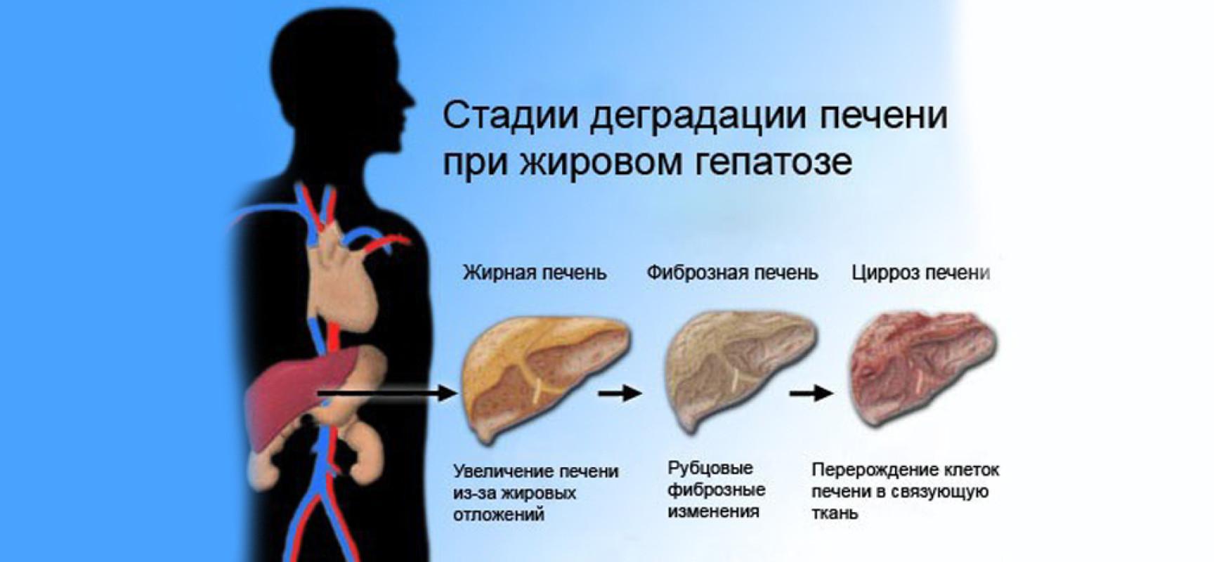 Здоровая печень | диета при жировом гепатозе