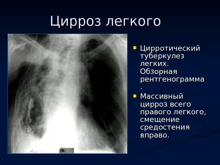 Симптомы и признаки при туберкулезе легких у взрослых: ранние и поздние