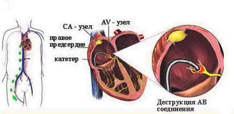 Абляция сердца: подготовка к процедуре, показания и противопоказания, возможные осложнения