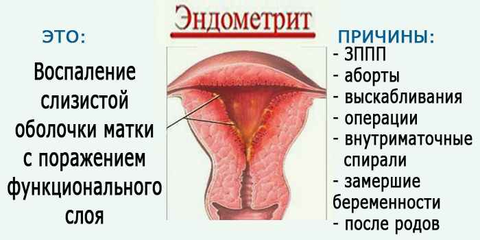 Эндометрит хронический и острый - лечение, симптомы, признаки эндометрита